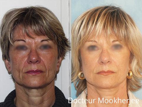 Greffe de graisse et lifting cervico facial