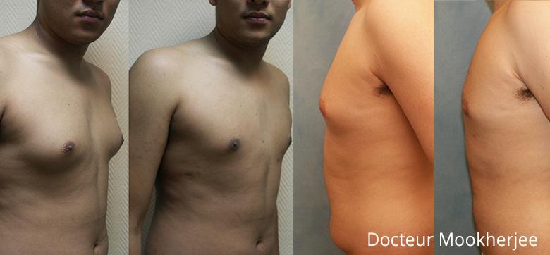 Gynecomastie et liposuccion abdomen homme