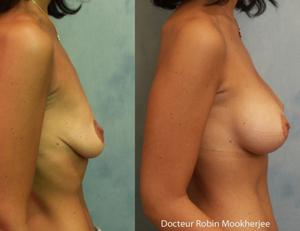 Lifting mammaire et augmentation