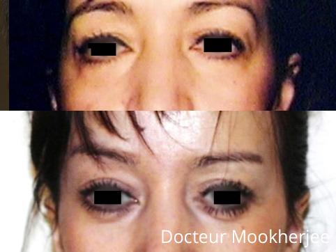 Modification de la forme tombante sur les yeux