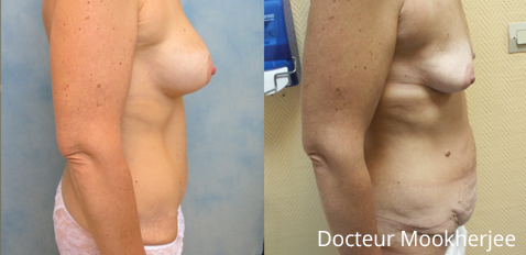 Plastie abdominale et remontée des seins